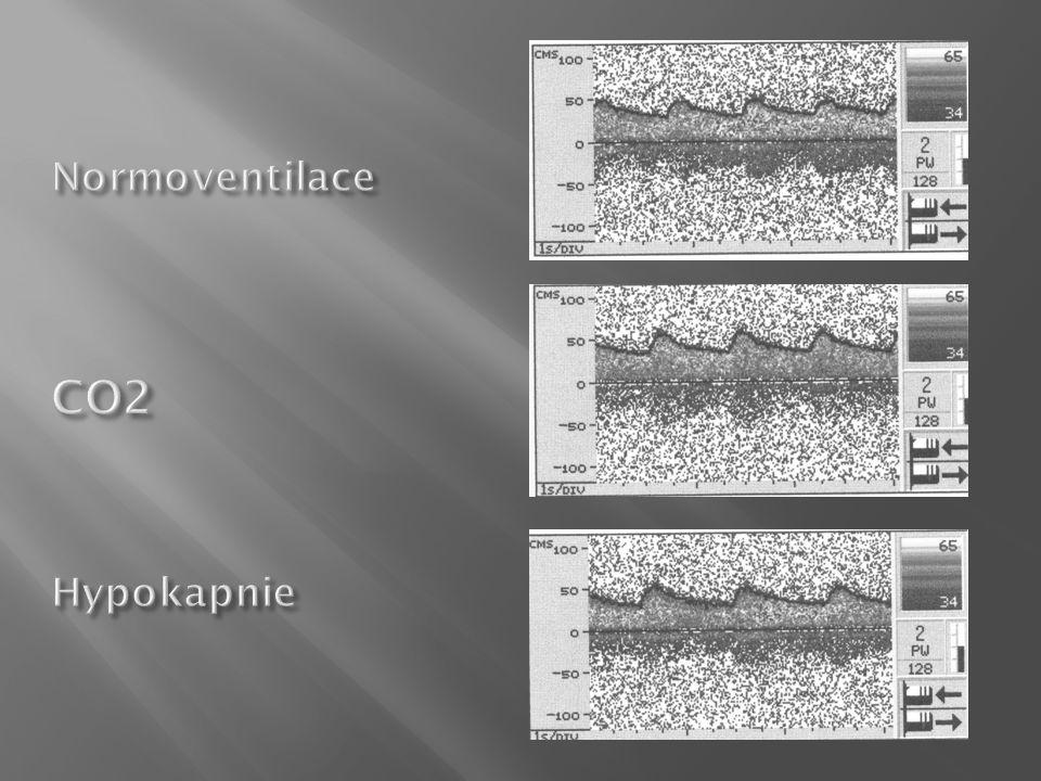 Normoventilace CO2 Hypokapnie