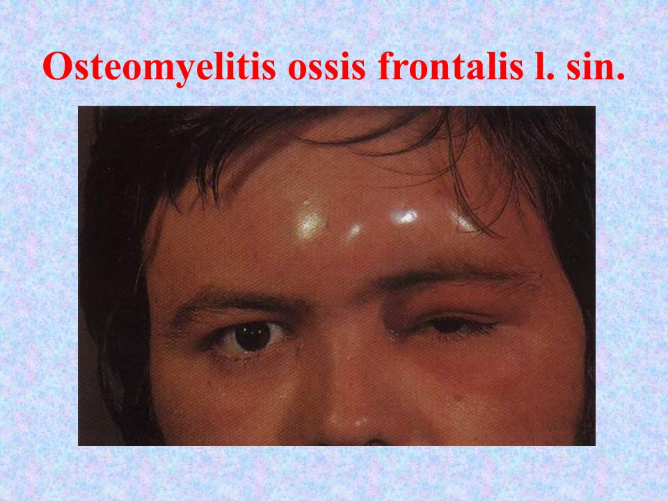 Osteomyelitis ossis frontalis l. sin.