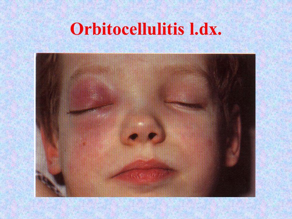 Orbitocellulitis l.dx. Orbitocellulitis l. dex.
