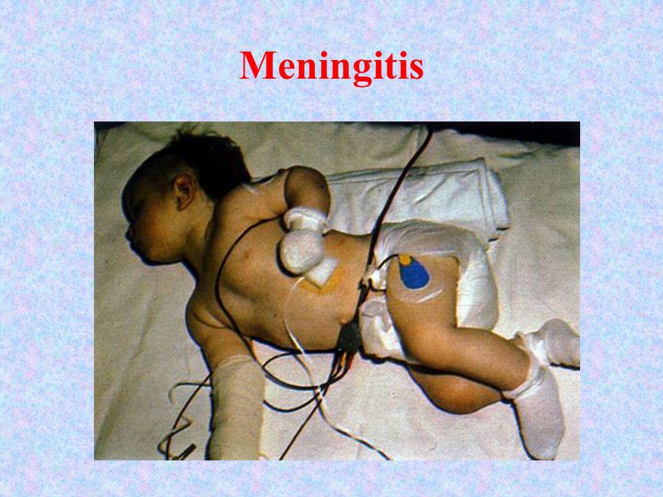 Meningitis Meningitis