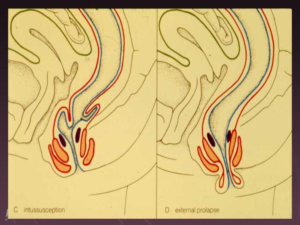 039 Pelvic hiatal hernia