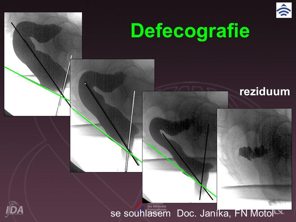 Defecografie reziduum
