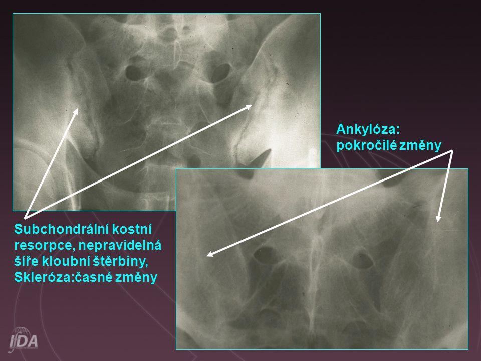 Ankylóza: pokročilé změny. Subchondrální kostní.