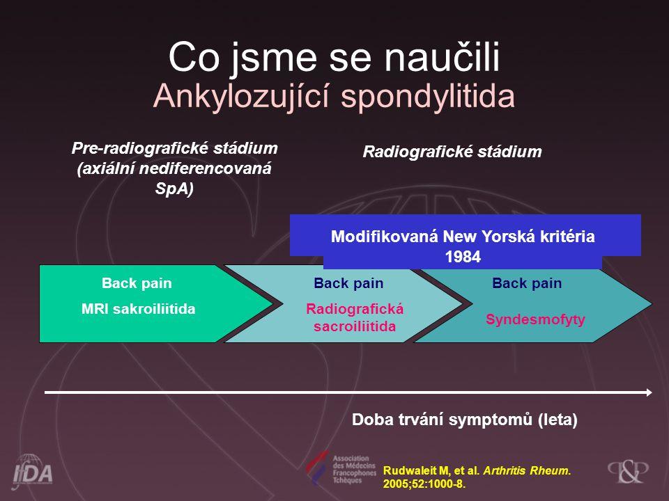 Co jsme se naučili Ankylozující spondylitida