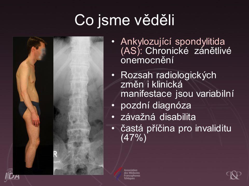 Co jsme věděli Ankylozující spondylitida (AS): Chronické zánětlivé onemocnění. Rozsah radiologických změn i klinická manifestace jsou variabilní.