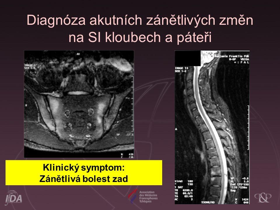Diagnóza akutních zánětlivých změn na SI kloubech a páteři
