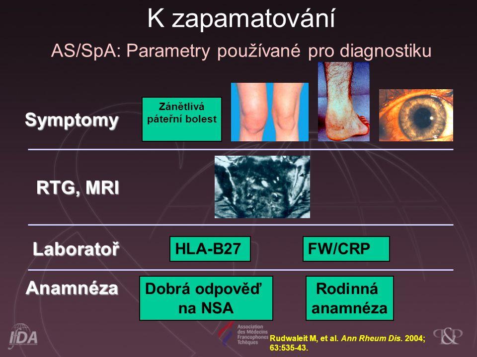 K zapamatování AS/SpA: Parametry používané pro diagnostiku