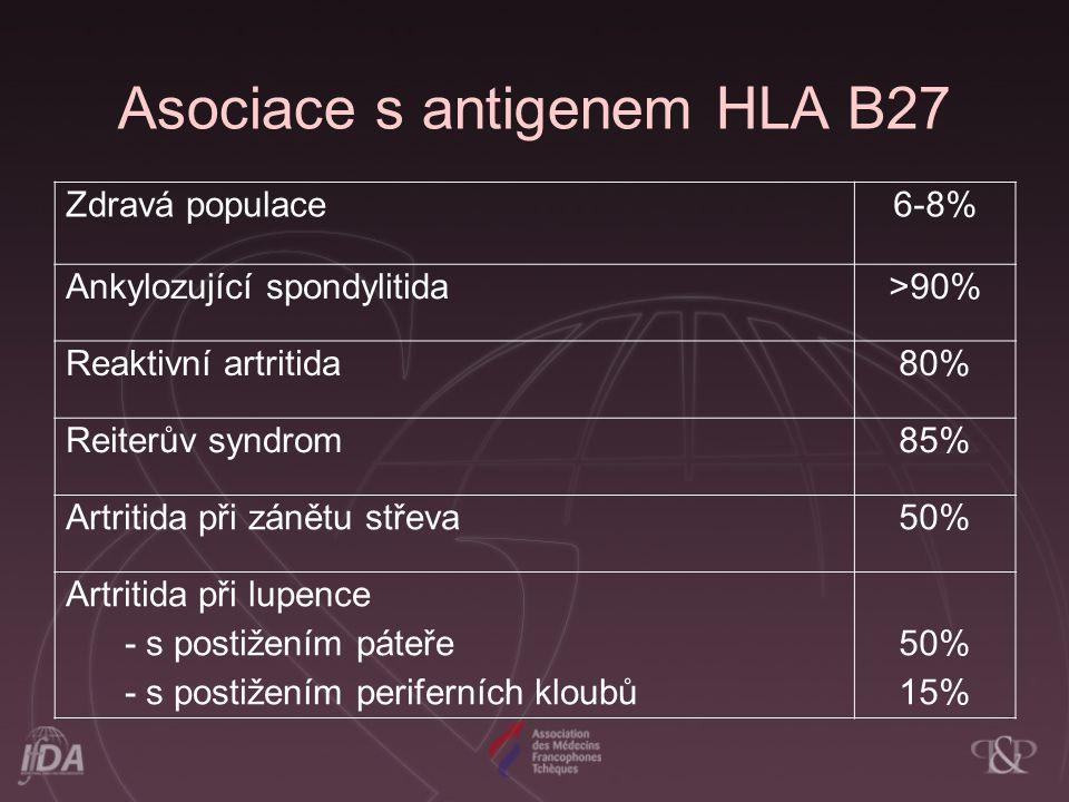 Asociace s antigenem HLA B27