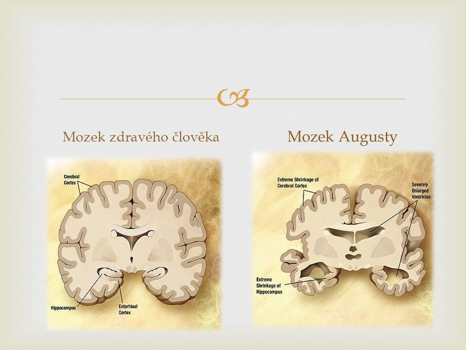 Mozek zdravého člověka