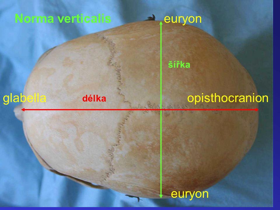 Norma verticalis euryon šířka glabella opisthocranion délka euryon