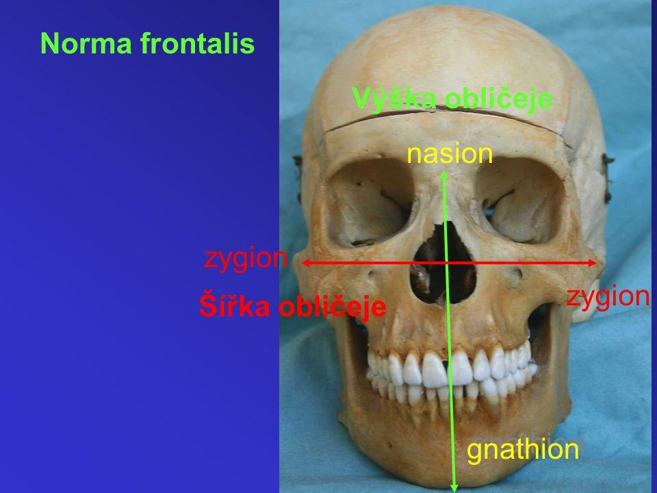Norma frontalis Výška obličeje nasion zygion zygion Šířka obličeje gnathion