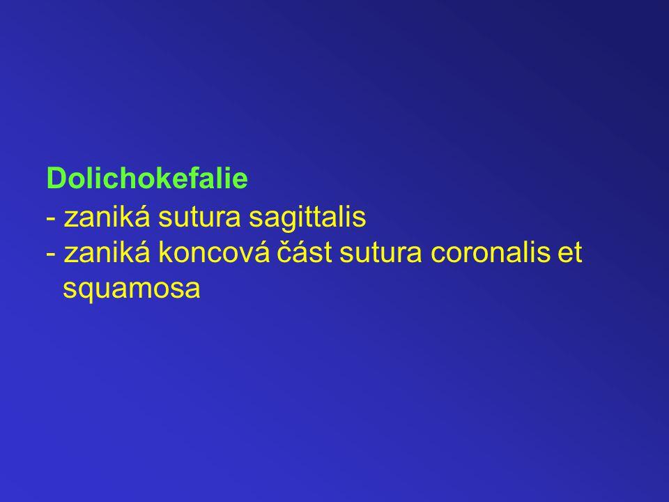 Dolichokefalie - zaniká sutura sagittalis - zaniká koncová část sutura coronalis et squamosa