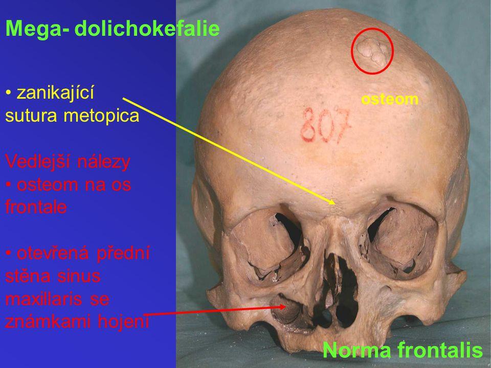 Mega- dolichokefalie Norma frontalis • zanikající sutura metopica