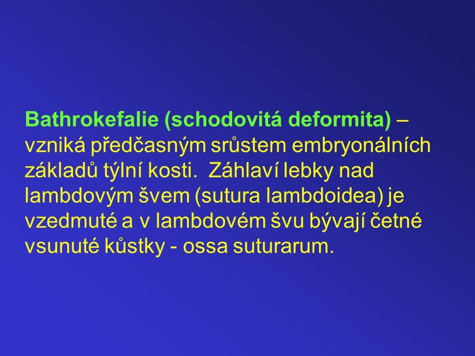 Bathrokefalie (schodovitá deformita) – vzniká předčasným srůstem embryonálních základů týlní kosti.