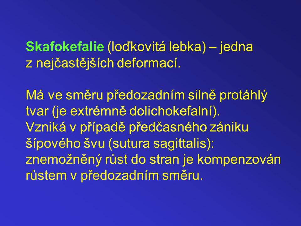 Skafokefalie (loďkovitá lebka) – jedna z nejčastějších deformací