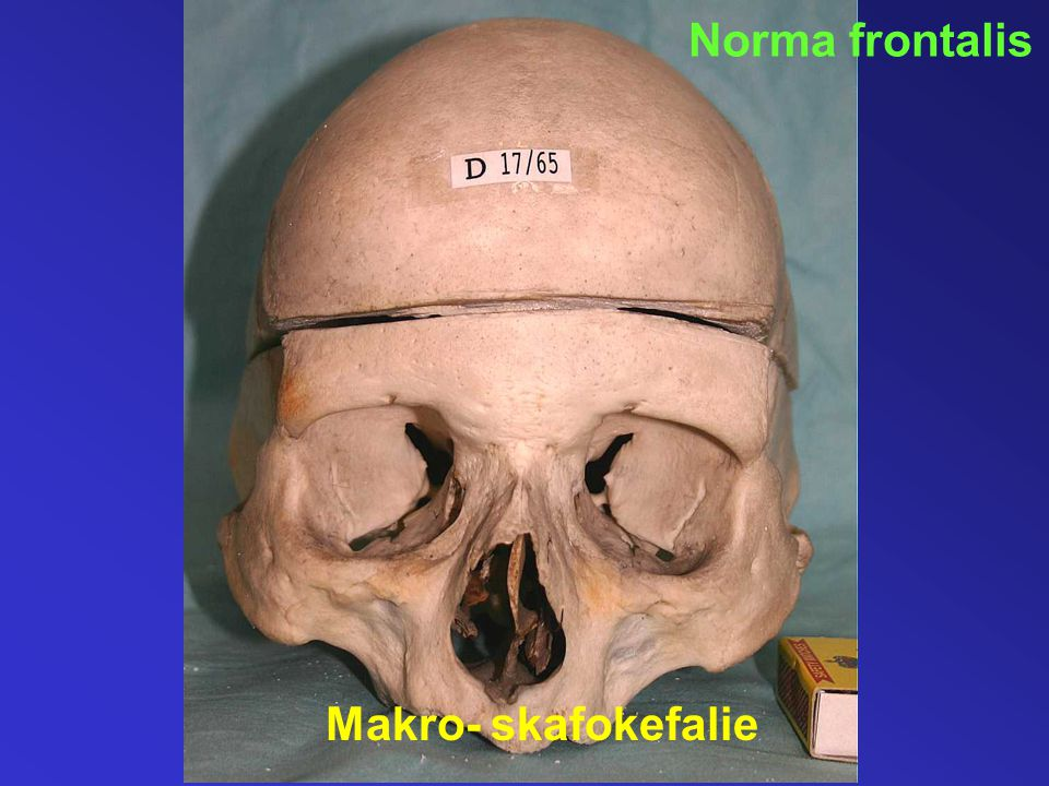 Norma frontalis Makro- skafokefalie