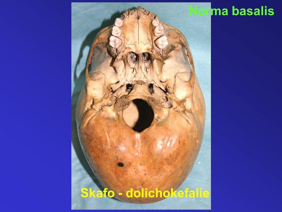 Norma basalis Skafo - dolichokefalie