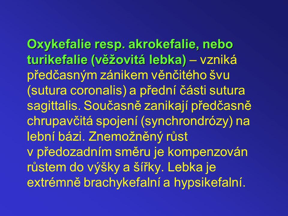 Oxykefalie resp.