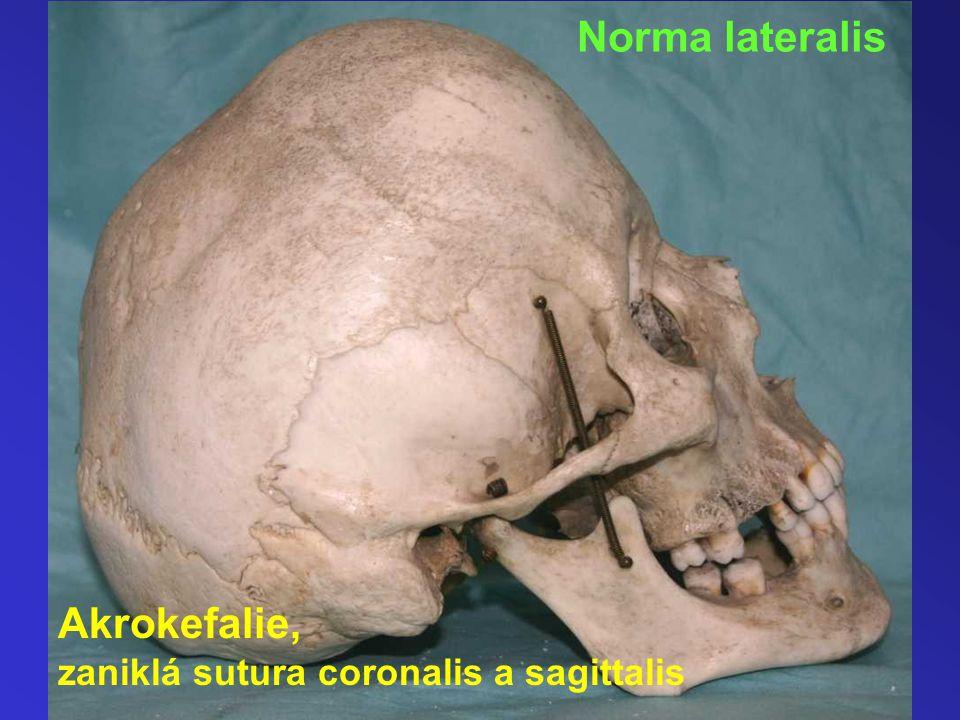 Norma lateralis Akrokefalie, zaniklá sutura coronalis a sagittalis