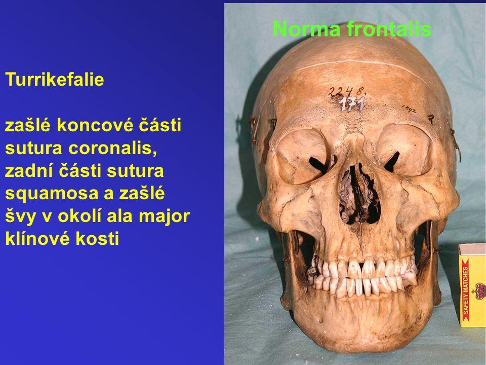 Norma frontalis Turrikefalie zašlé koncové části sutura coronalis,
