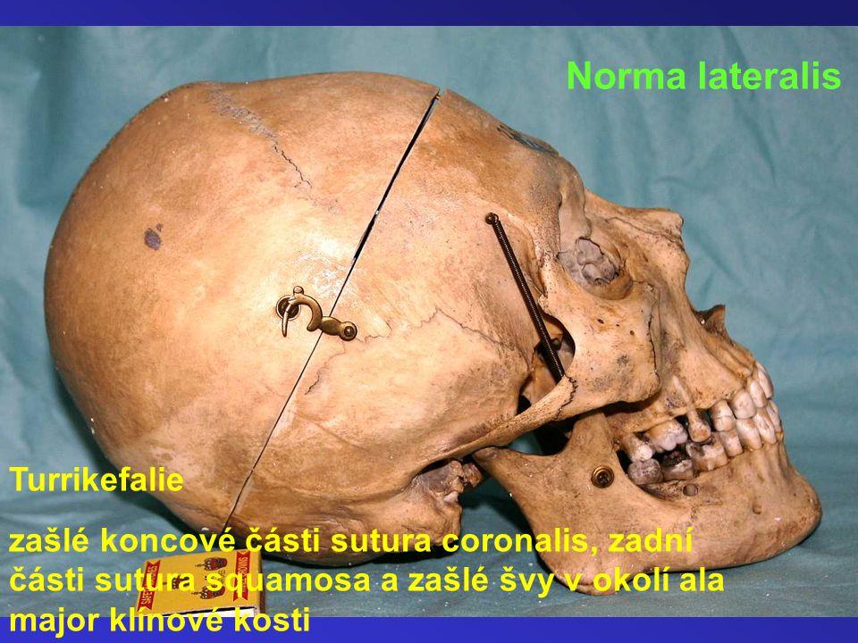 Norma lateralis Turrikefalie