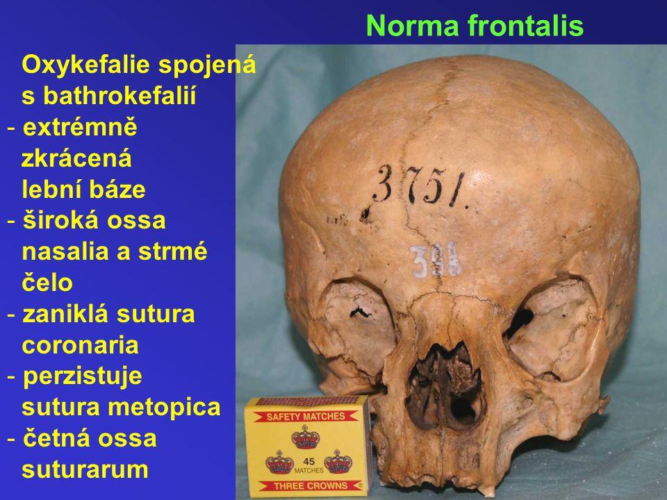 Norma frontalis Oxykefalie spojená s bathrokefalií extrémně zkrácená