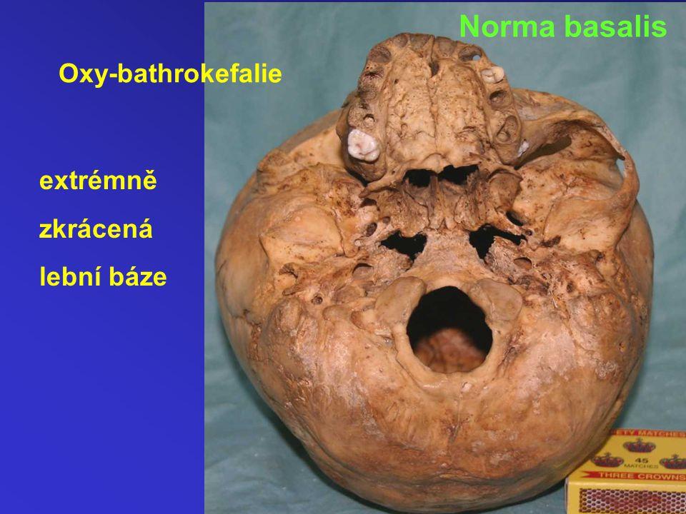 Norma basalis Oxy-bathrokefalie extrémně zkrácená lební báze