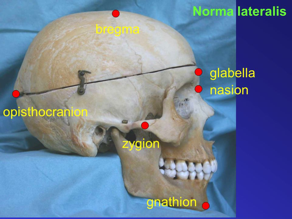 Norma lateralis bregma glabella nasion opisthocranion zygion gnathion