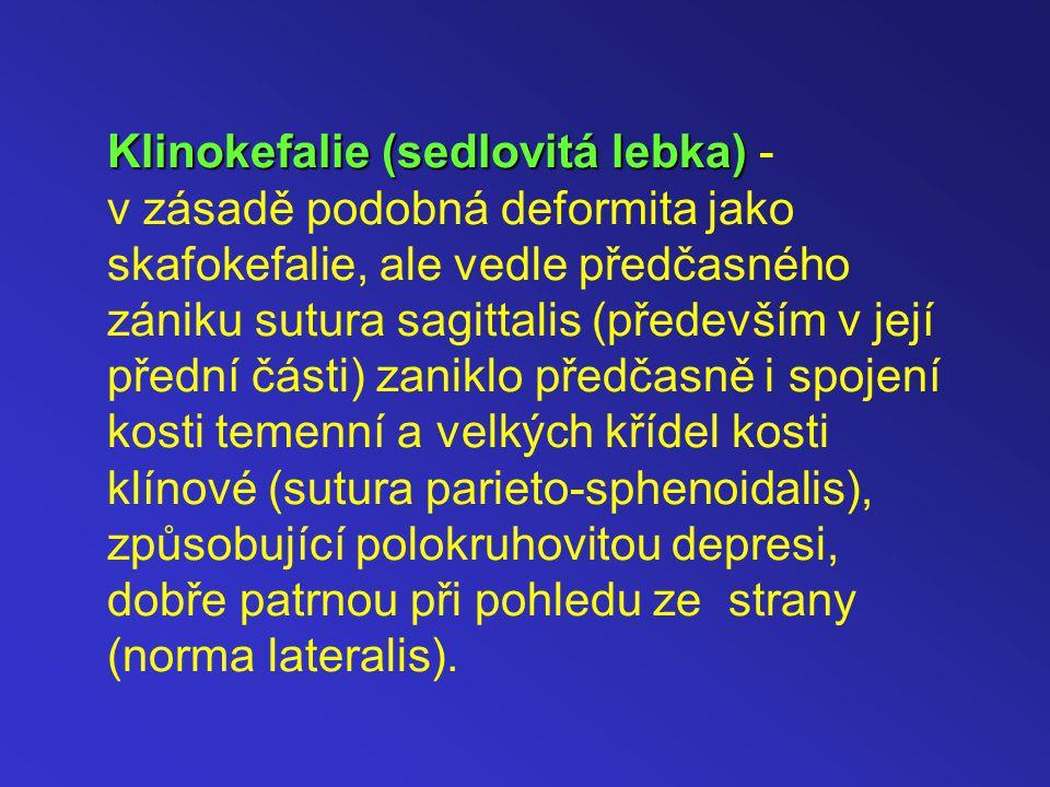Klinokefalie (sedlovitá lebka) - v zásadě podobná deformita jako skafokefalie, ale vedle předčasného zániku sutura sagittalis (především v její přední části) zaniklo předčasně i spojení kosti temenní a velkých křídel kosti klínové (sutura parieto-sphenoidalis), způsobující polokruhovitou depresi, dobře patrnou při pohledu ze strany (norma lateralis).
