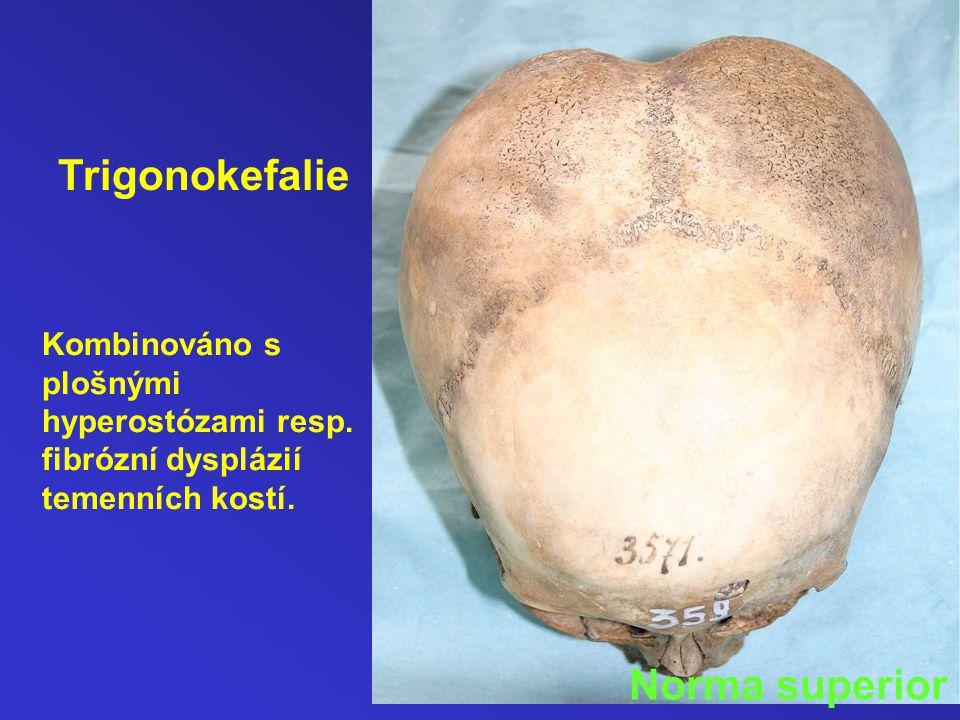 Trigonokefalie Norma superior
