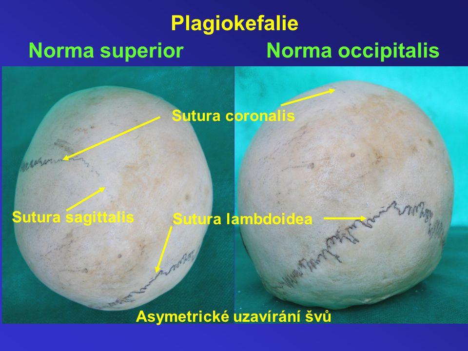 Plagiokefalie Norma superior Norma occipitalis Sutura coronalis