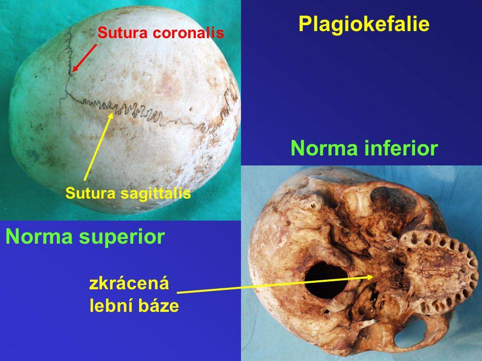 Plagiokefalie Norma inferior Norma superior zkrácená lební báze