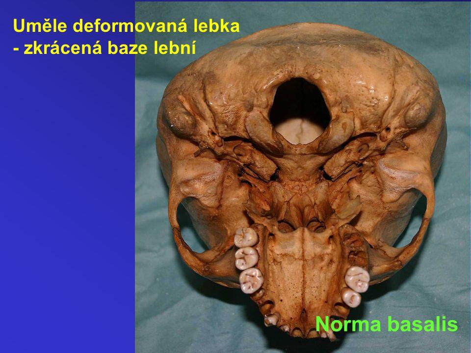 Uměle deformovaná lebka