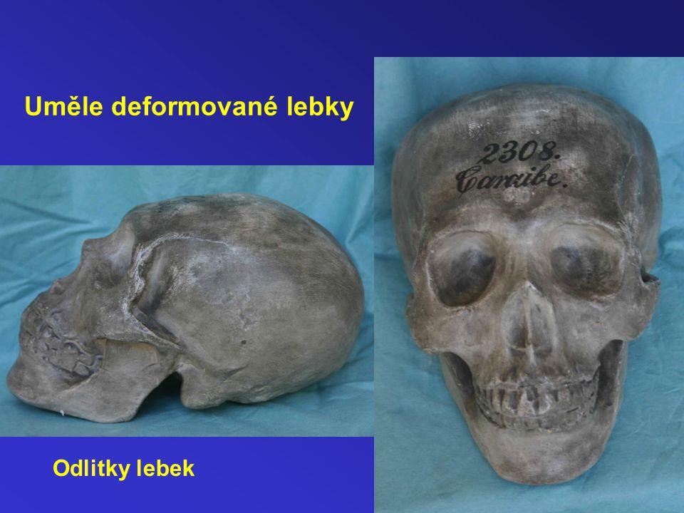 Uměle deformované lebky