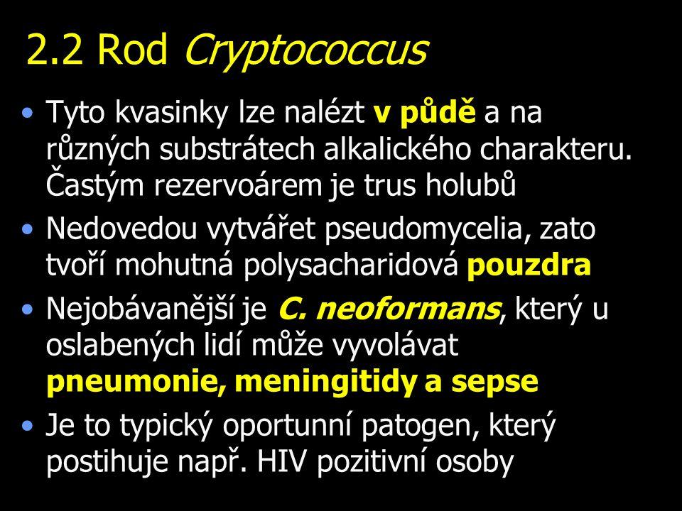 2.2 Rod Cryptococcus Tyto kvasinky lze nalézt v půdě a na různých substrátech alkalického charakteru. Častým rezervoárem je trus holubů.