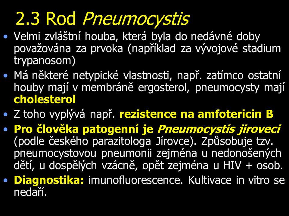 2.3 Rod Pneumocystis Velmi zvláštní houba, která byla do nedávné doby považována za prvoka (například za vývojové stadium trypanosom)