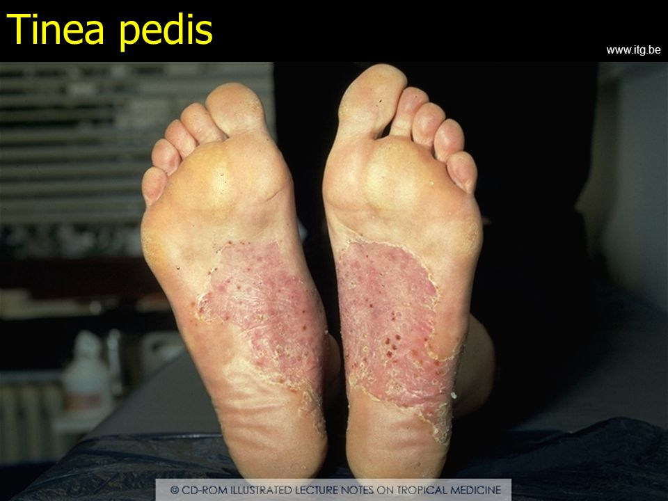Tinea pedis www.itg.be