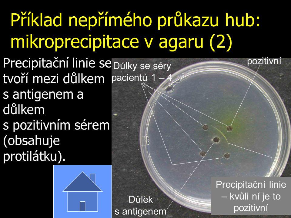 Příklad nepřímého průkazu hub: mikroprecipitace v agaru (2)