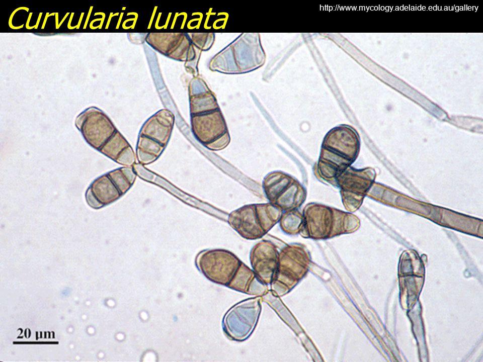 Curvularia lunata http://www.mycology.adelaide.edu.au/gallery