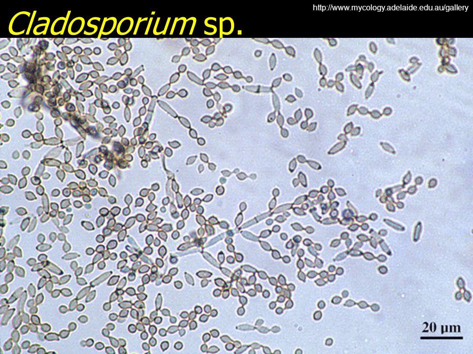 Cladosporium sp. http://www.mycology.adelaide.edu.au/gallery