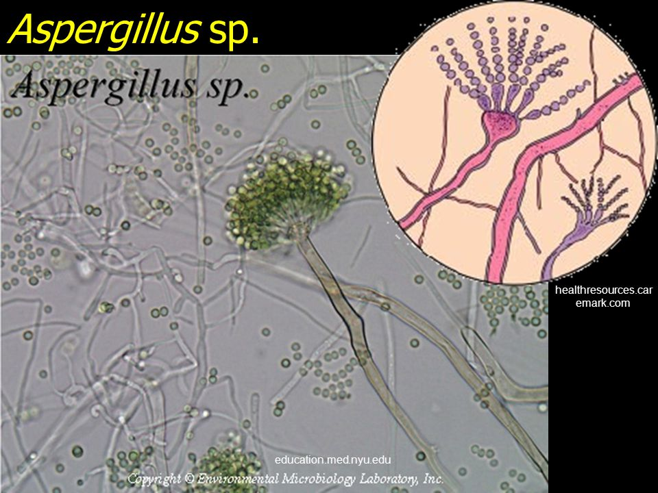 Aspergillus sp. healthresources.caremark.com education.med.nyu.edu