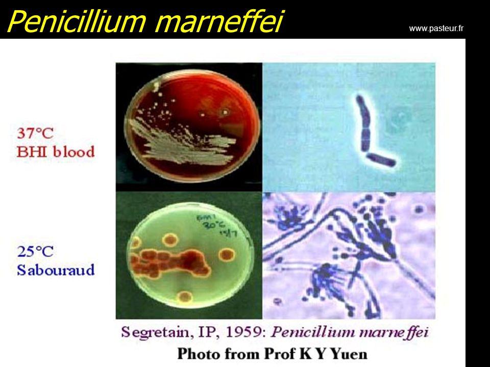 Penicillium marneffei