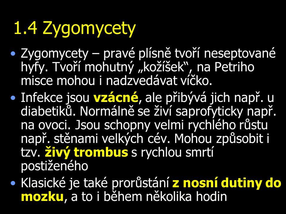 """1.4 Zygomycety Zygomycety – pravé plísně tvoří neseptované hyfy. Tvoří mohutný """"kožíšek , na Petriho misce mohou i nadzvedávat víčko."""