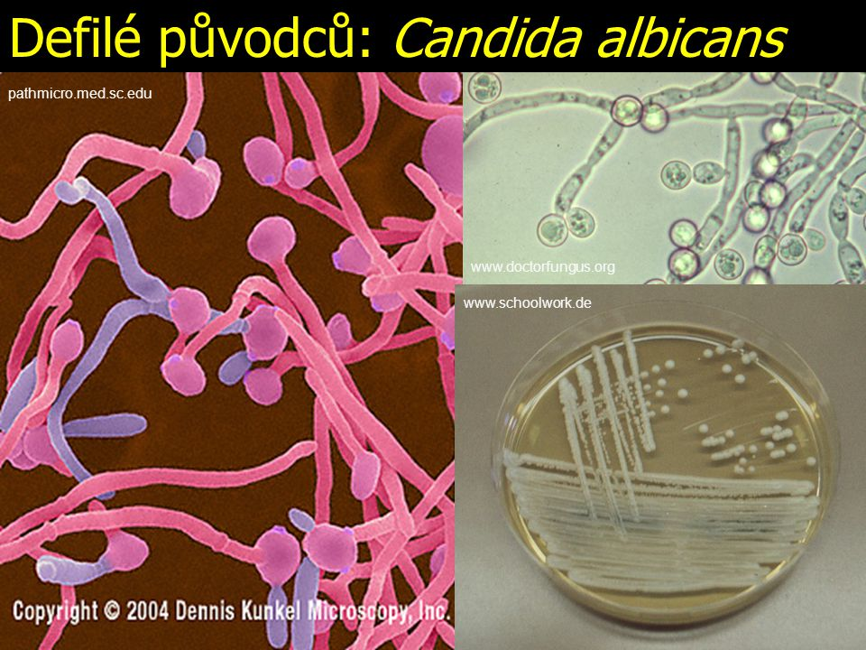 Defilé původců: Candida albicans