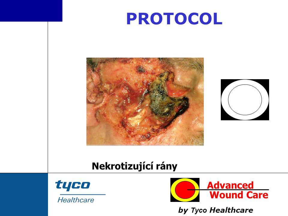 PROTOCOL Nekrotizující rány Advanced Wound Care by Tyco Healthcare