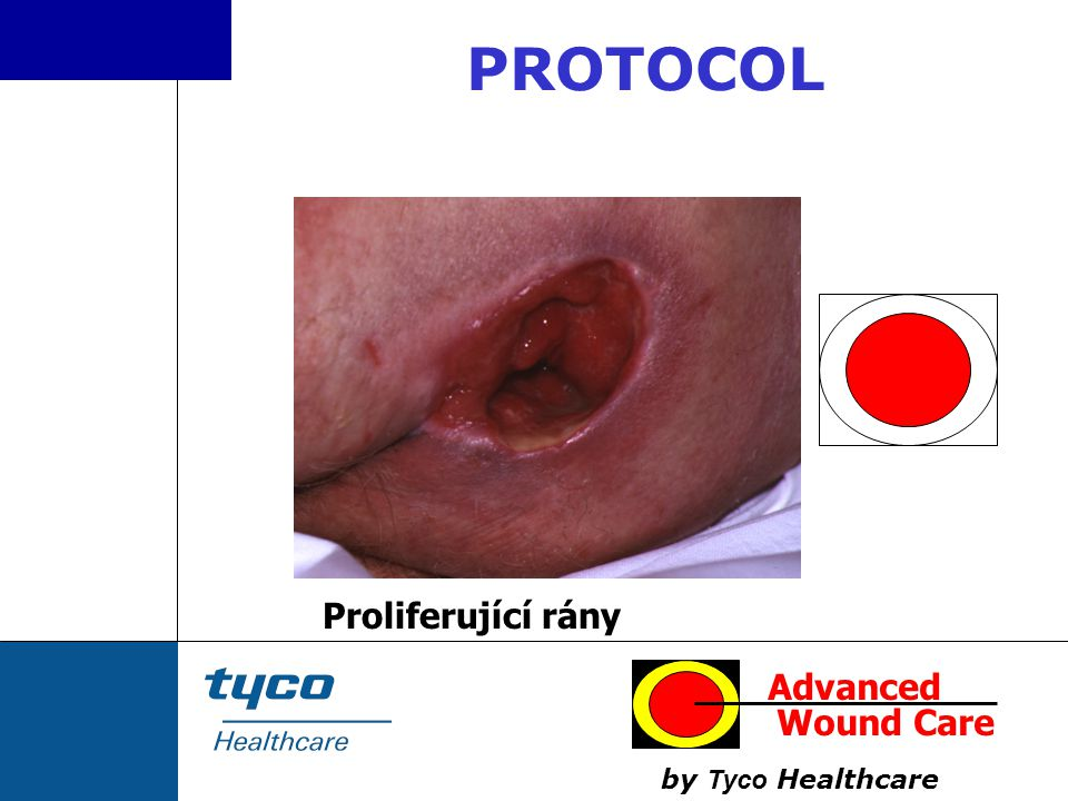 PROTOCOL Proliferující rány Advanced Wound Care by Tyco Healthcare