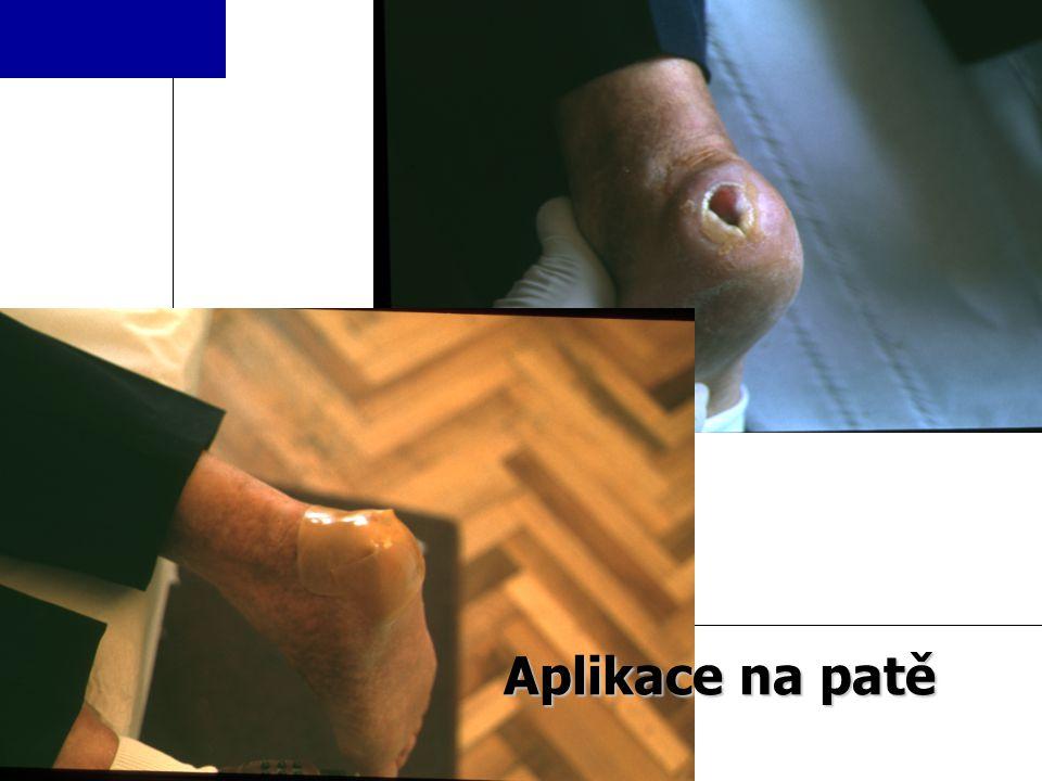 ULTEC PRO Aplikace na patě
