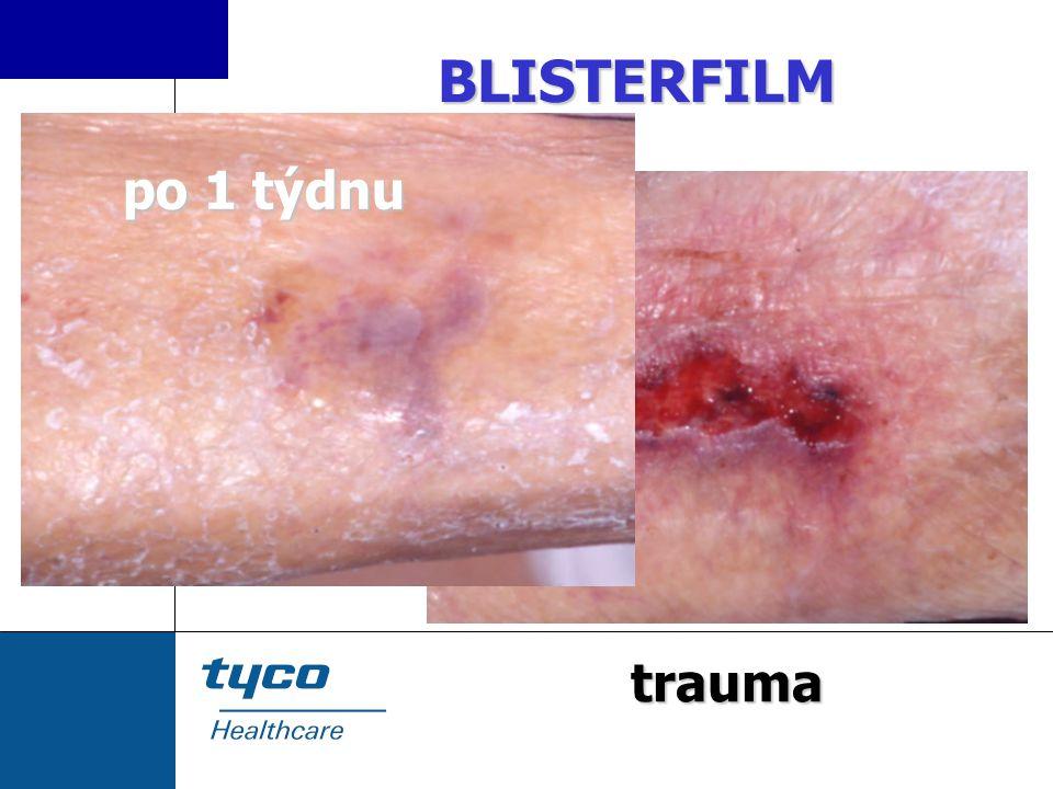 BLISTERFILM po 1 týdnu trauma