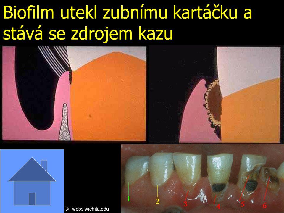 Biofilm utekl zubnímu kartáčku a stává se zdrojem kazu
