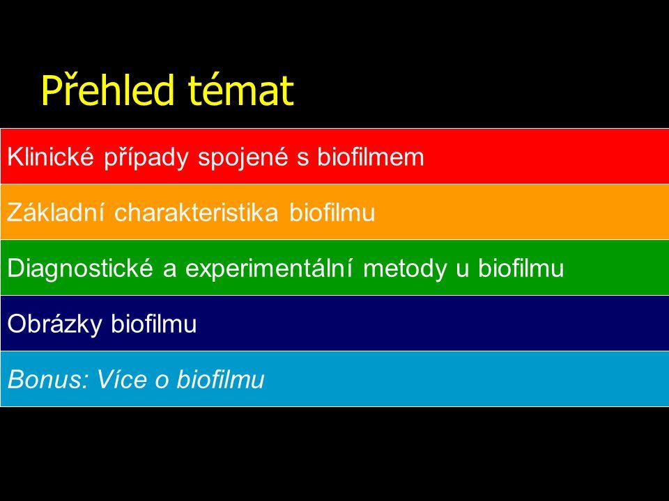 Přehled témat Klinické případy spojené s biofilmem